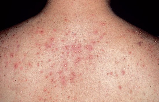post steroid acne