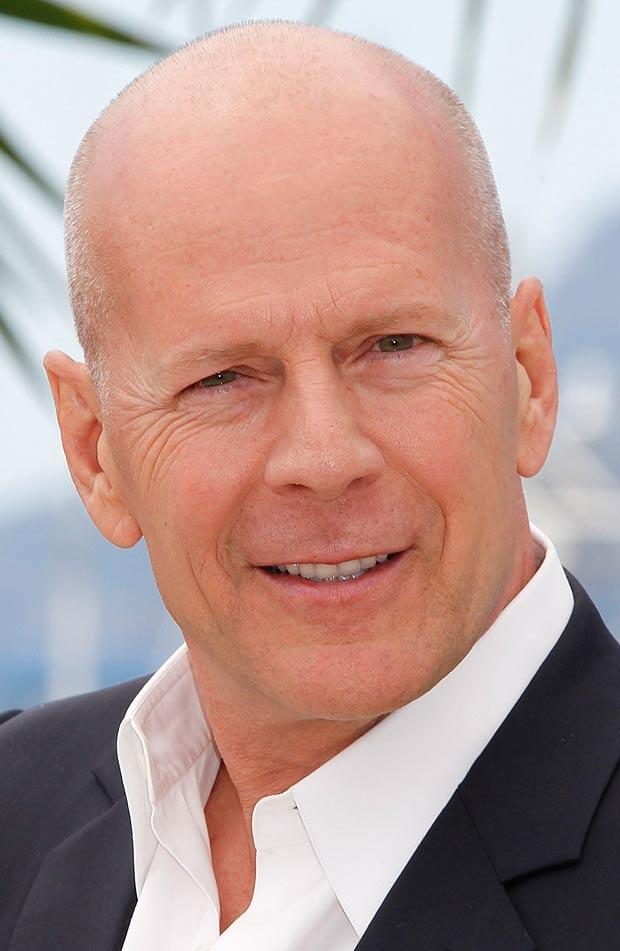 Bruce willis hair loss