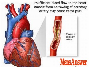cholesterol and heart disease