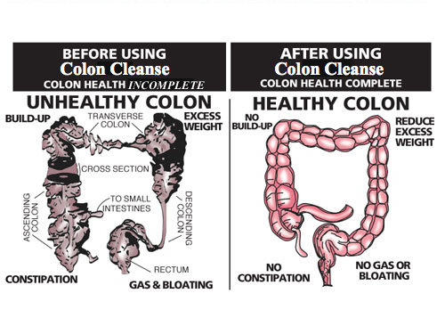 before and after using colon cleanse for flat stomach